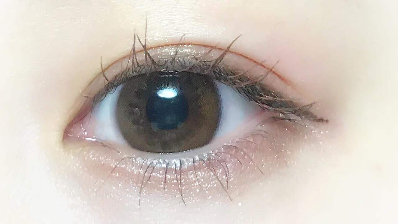 の が 青い 周り 黒目