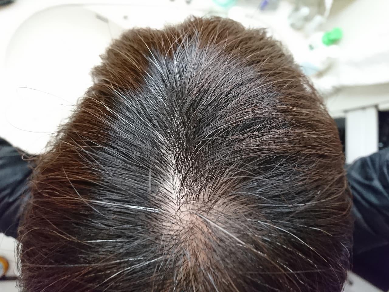 髪の毛 黒く する