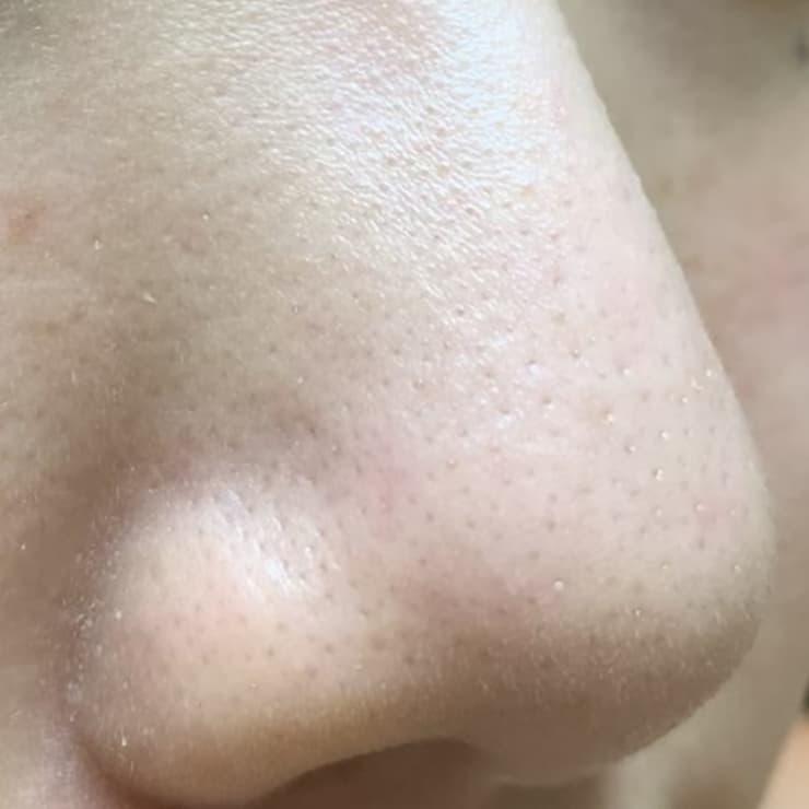 グリセリン 毛穴